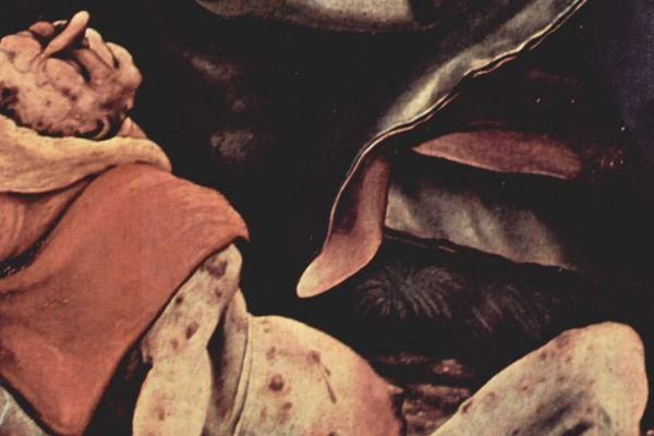 Un homme le ventre gonflé avec ulcères atteint du Mal des Ardents