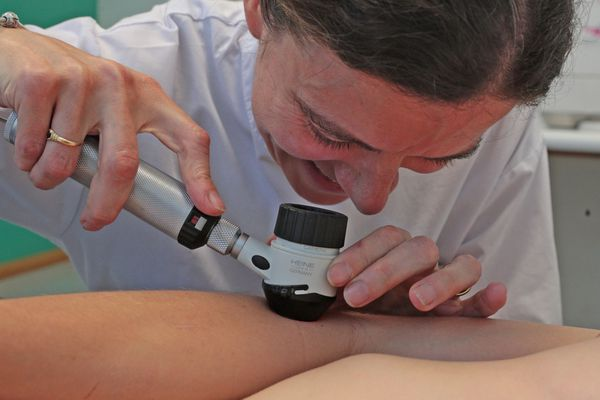 Le délai d'attente moyen pour une consultation de dermatologie dans les Bouches-du-Rhône est de 102 jours. Il n'y a aucun rendez-vous disponible dans les Alpes-de-Haute-Provence et dans les Hautes-Alpes.