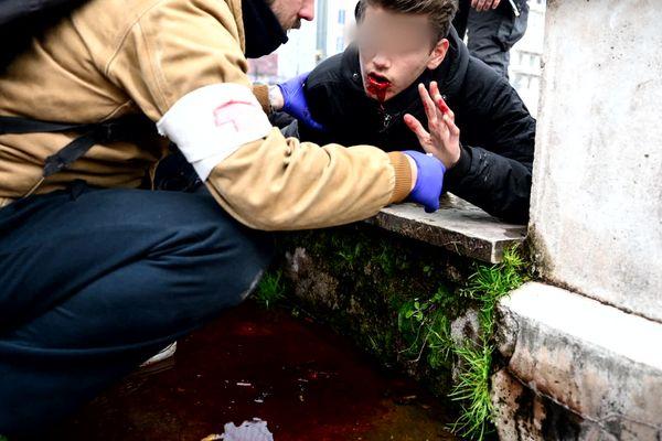 Ce jeune lyonnais a eu la mâchoire fracturée par un tir de LBD lors d'une manifestation en mars 2020. Il continue d'en subir les séquelles, notamment psychologique