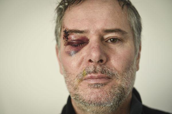 Sept points de suture et une vue diminuée, conséquences d'un tir de grenade lacrymogène le 19/01/2019, selon Jean-Claude Moschetti photographe indépendant
