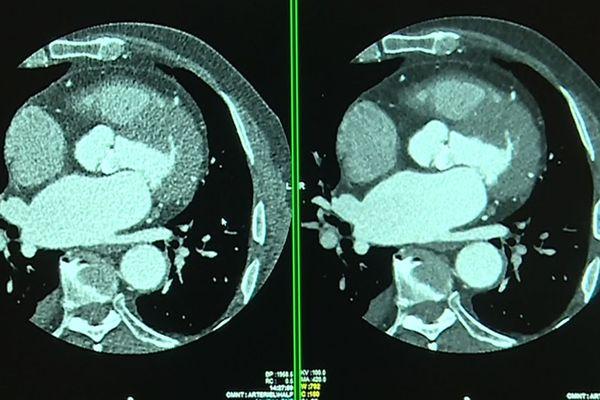 À droite, une image granuleuse prise avec un scanner classique. À gauche, une image obtenue grâce à un scanner aidé de l'intelligence artificielle.