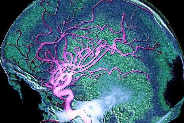 Artériographie révèlant la circulation sanguine dans le cerveau
