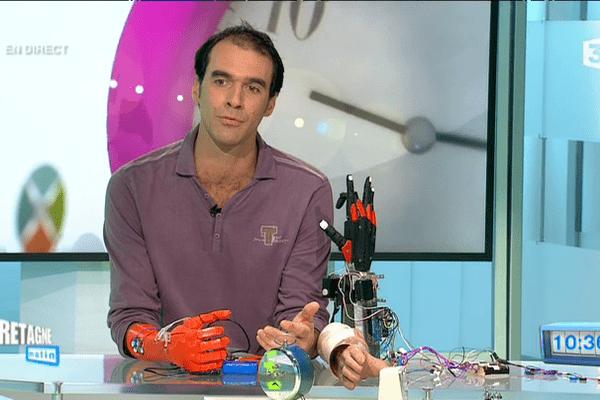 Nicolas Huchet et sa main bionique, fabriquée grâce à une imprimante 3D