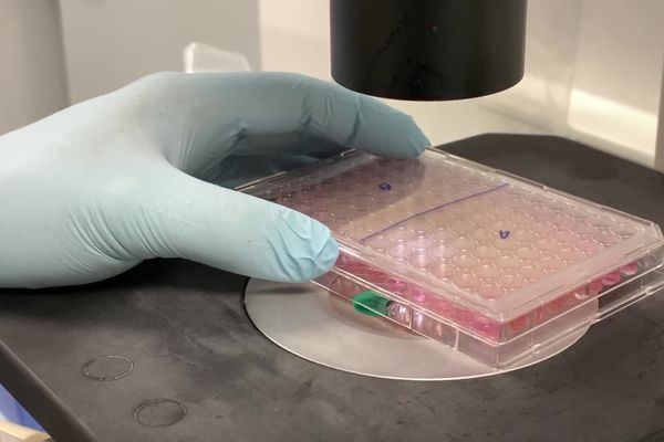 Coronavirus : un test sérologique innovant développé par une entreprise de Limoges