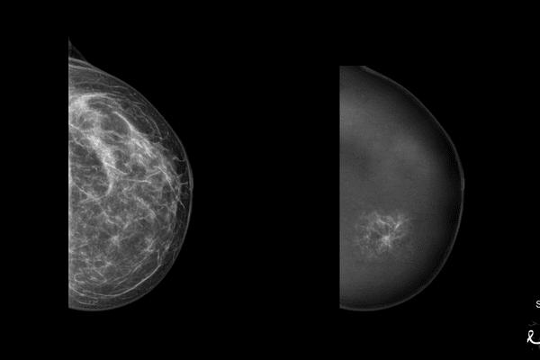 Mammographie Breast-SlimView / Hera-Mi