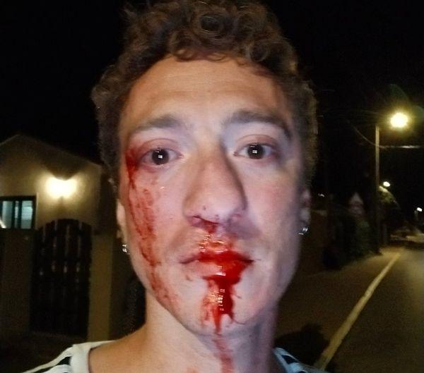 Tout comme Mickaël Gaspar, Benoît David a eu le nez fracturé.