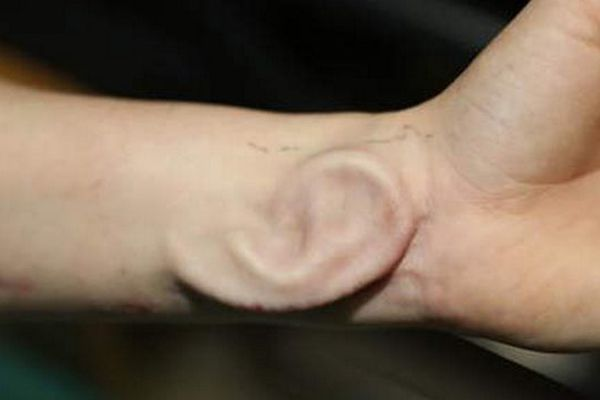 Une oreille implantée dans l'avant-bras d'une patiente. Elle a ensuite été greffée.