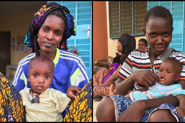 La mission organisée par l'association La Chaîne de l'Espoir doit opérer une cinquantaine d'enfants.