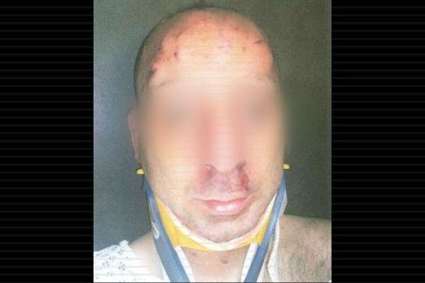 Le policier blessé à coups de casque.