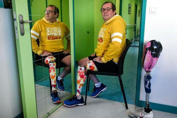 Bruno Paul montre ses deux prothèses colorées
