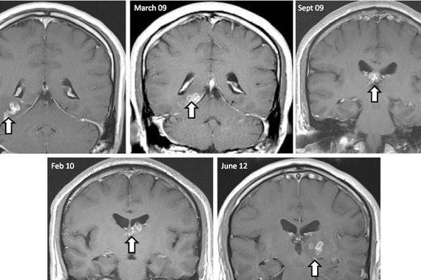 Un ver dans le cerveau d'un patient britannique.