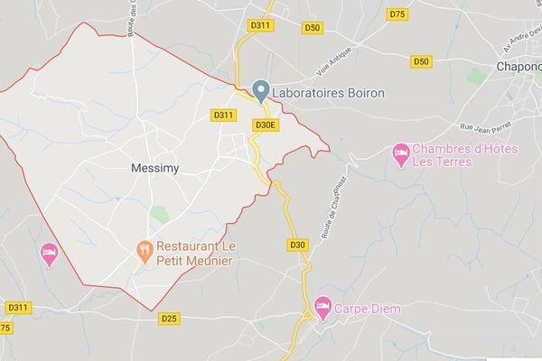 """C'est à Messimy dans le Rhône, qu'un enfant de 5 ans a été mordu au visage par un chien de type """"molosse""""."""