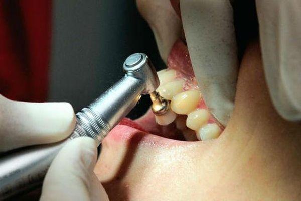 La plupart des cabinets dentaires seront fermés