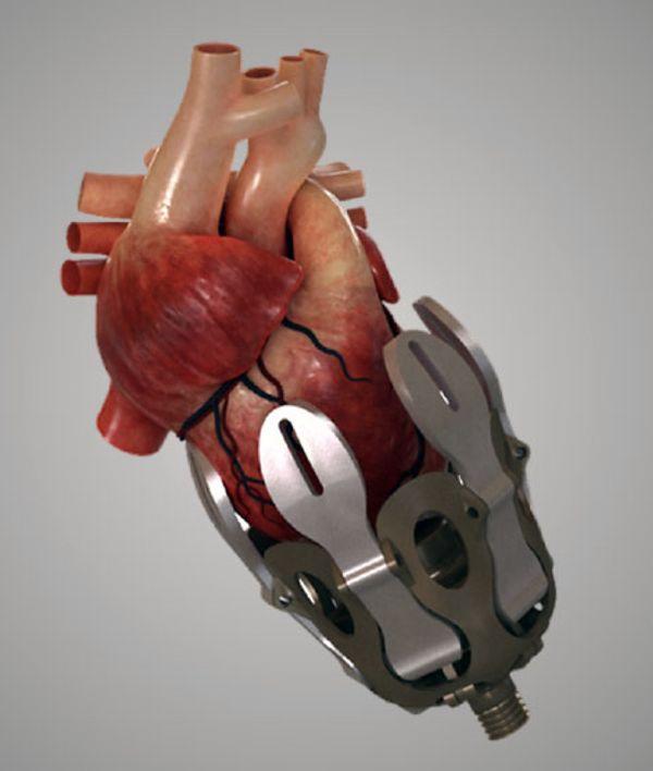 Simulation numérique de l'exosquelette cardiaque