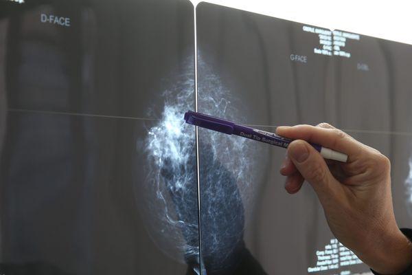 En région Centre, c'est la prise en charge des patients atteints d'un cancer qui préoccupe - Photo d'illustration