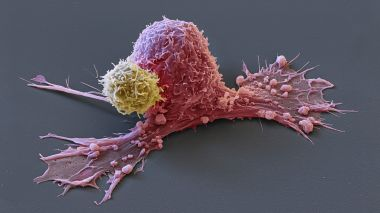 Une cellule cancéreuse (rose) attaquée par une Chimeric antigen Receptor (Car)-T-cell (en jaune). / © Eye of Science / Maxppp