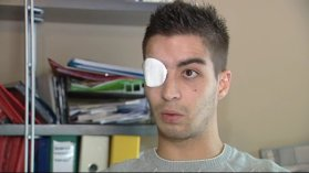 """Casti"" le supporter de 22 ans a perdu l'usage de son oeil droit - archives / © France 3 LR"